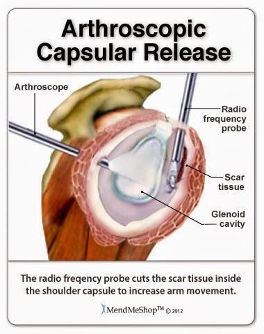 Shoulder Capsule