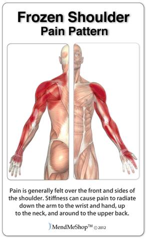 pain patterns frozen shoulder
