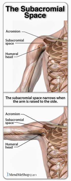 Shoulder Impingement Syndrome occurs when the subacromial space lessens due to misalignment, abnormal bone growths, thickening of the tendon, or swelling in the bursa.