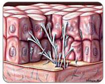 scar tissue microscopic