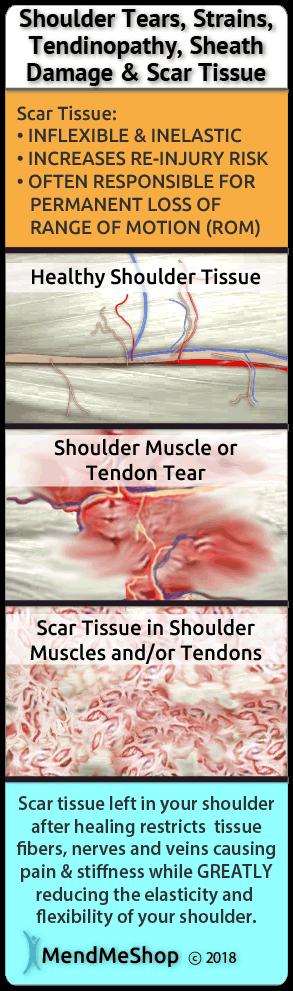 injured Muscle Tissue Scar Tissue