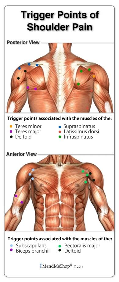 Shoulder Trigger Points